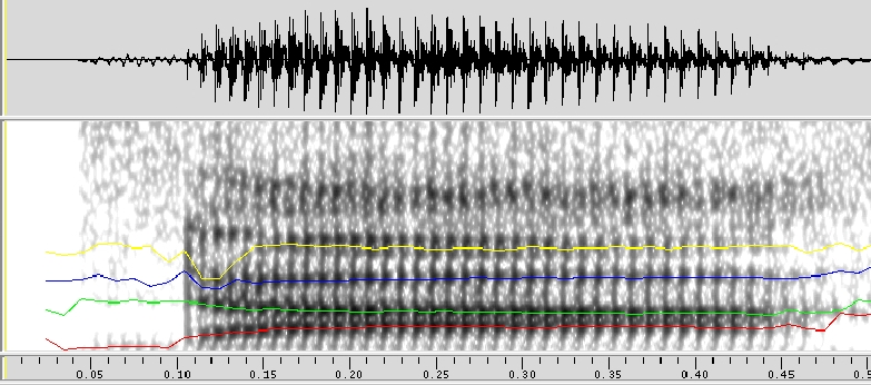 Acoustic analysis of the Thai syllable [da]